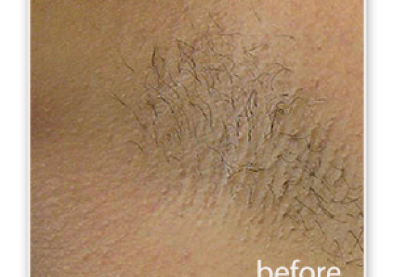 axillae - before treatment