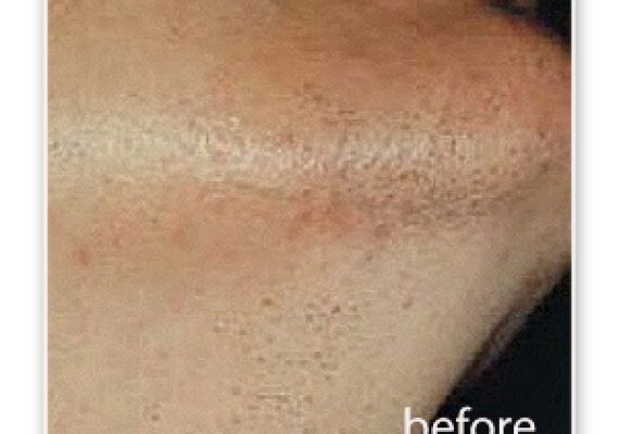 Chin - before treatment