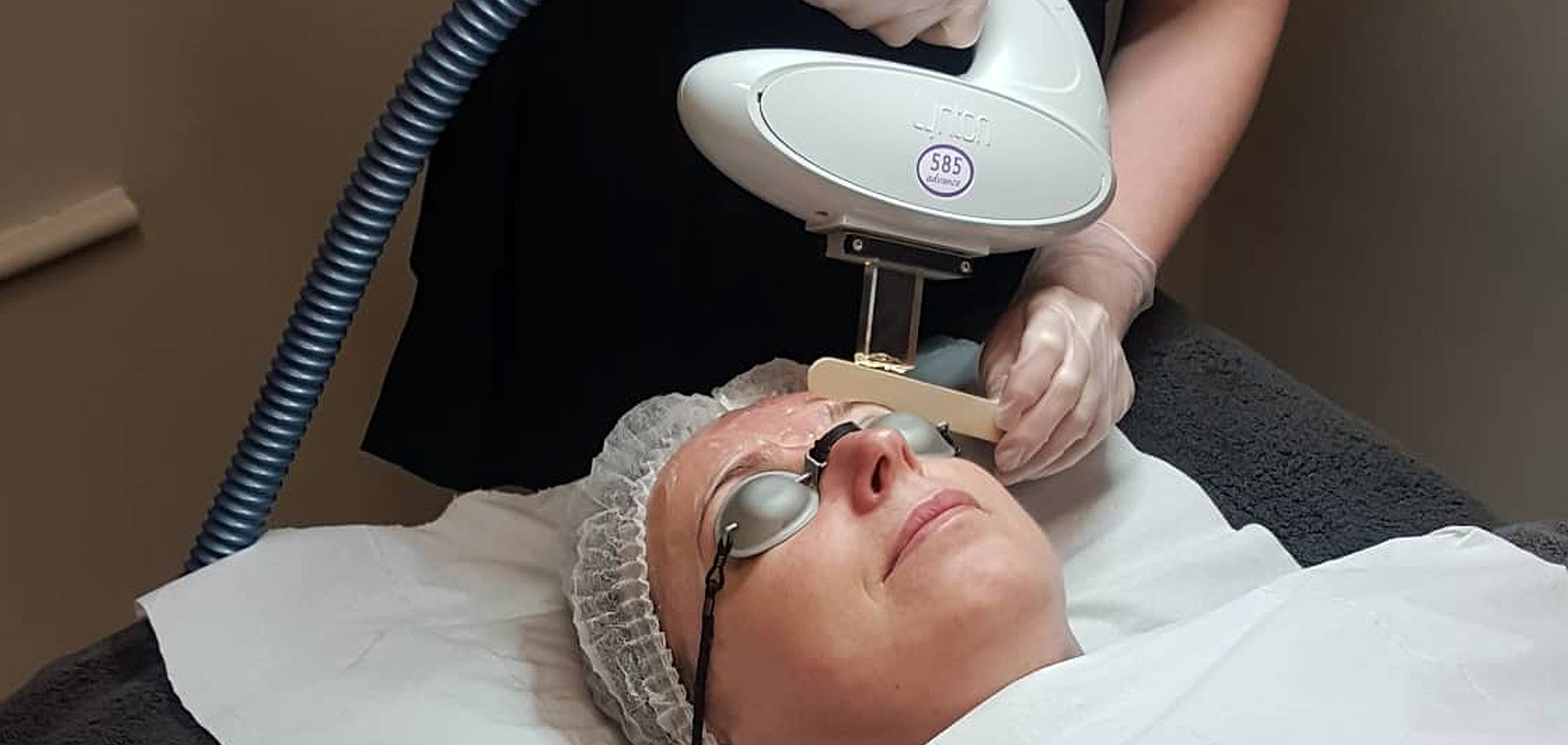 Intense Pulsed Light (IPL) treatments now available at Beauty Within