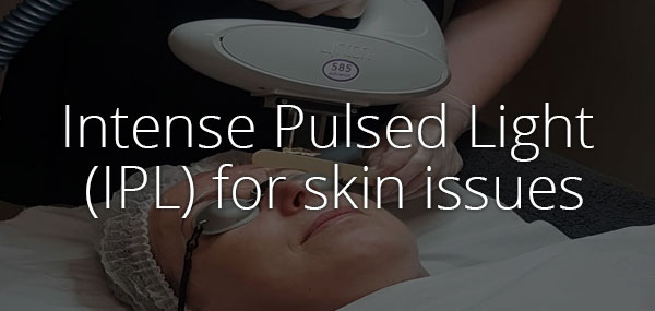 IPL for skin issues - advanced skincare treatment